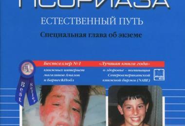 Лечение Псориаза Асд Фракция 3